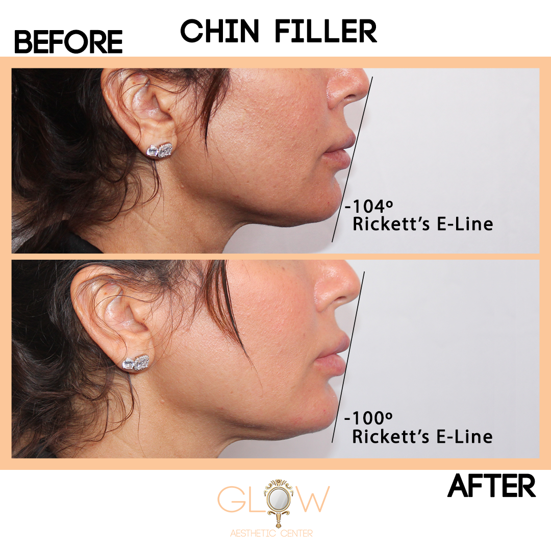 Chin Filler Before and After, Juvederm/Restylane | Encino, California