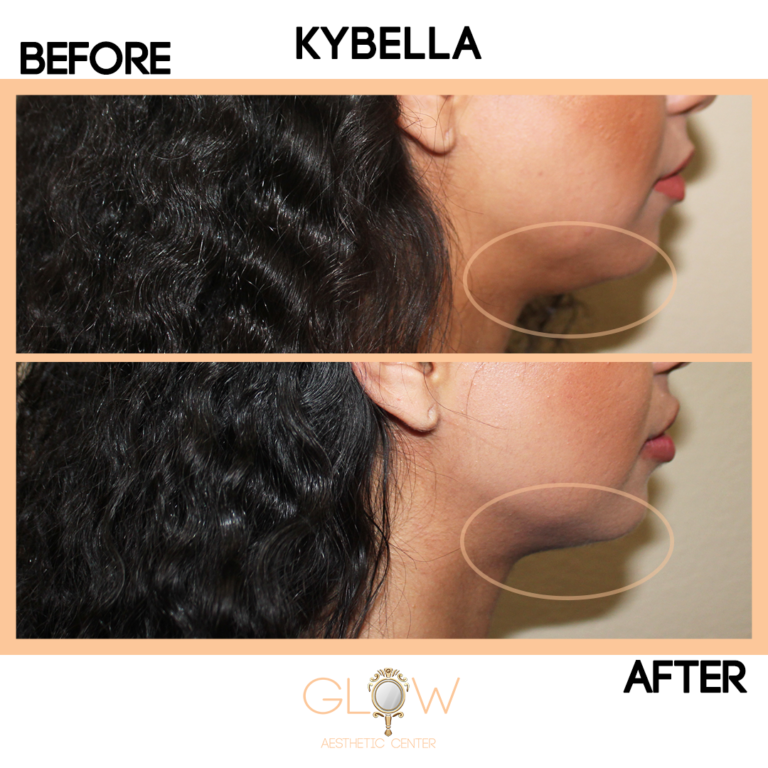 Kybella Before and After, Juvederm/Restylane   Encino, California