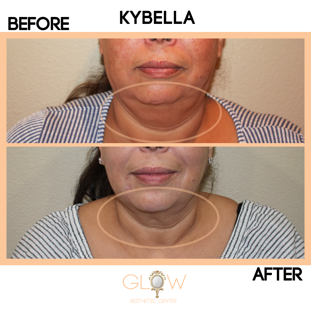 Kybella Before and After, Juvederm/Restylane | Encino, California