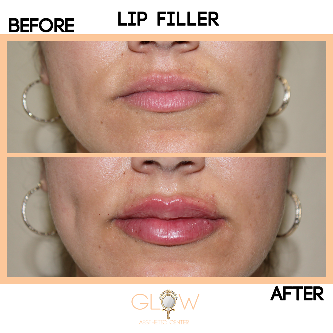 Lip Filler Before and After, Juvederm/Restylane | Encino, California