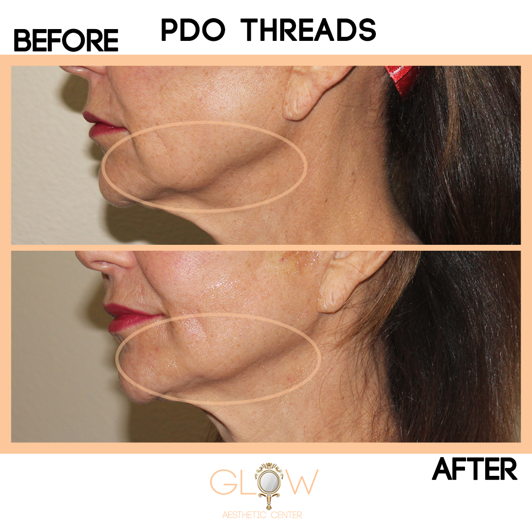 PDO Threads Before and After, NovaThreads | Encino, California