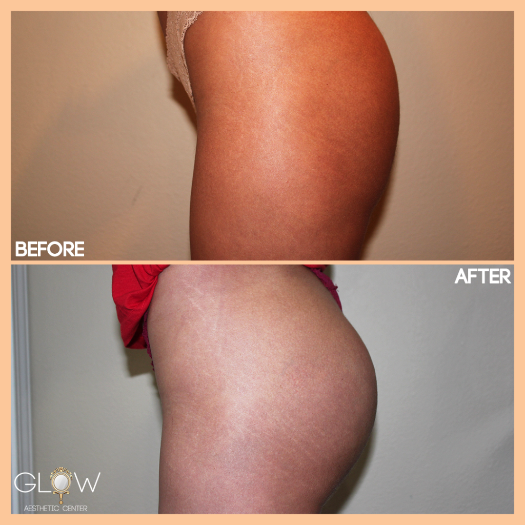 Sculptra Butt Lift Encino