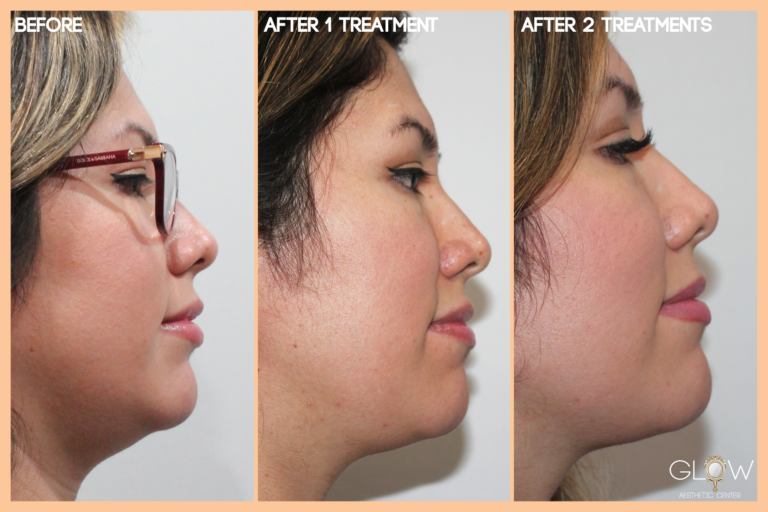 Kybella Before and After 2 Treatments