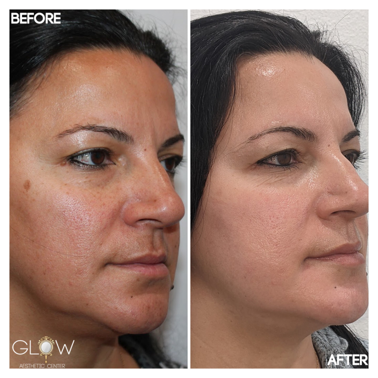 Cosmelan Peel Before and After